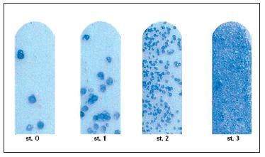 Modelová tabulka pro hodnocení množství SM ve stimulované slině.