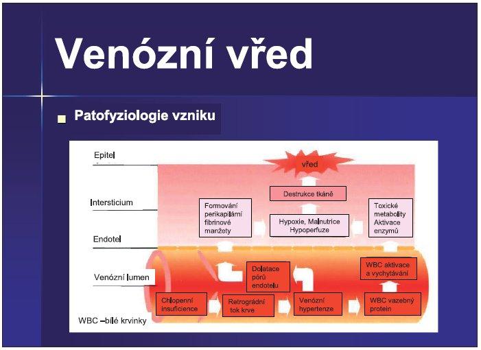 Schéma 1. Patofyziologie venózního vředu (upraveno dle Jason Miller (6)