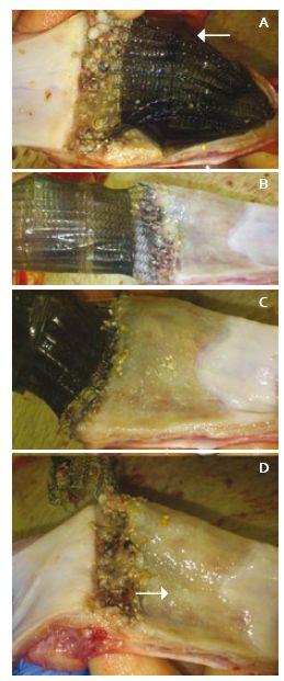 Pitevní nálezy distálního jícnu po týdnu: A. Stent přichycen patologicky ke stěně, distálně pokryt Xe - Dermou<sup>®</sup> (značeno šipkou). B, C. Stěna jícnu po postupném odstranění stentu, který pevně lne k nechráněnému pásu se zánětlivou reakcí. D. Patrné dvě kvality zhojení resekční plochy, s biomateriálem (značeno šipkou) a bez něj. Fig. 1. Autopsy findings from distal oesophagus after one week: A. The stent is pathologically attached to the wall, distally still covered with black Derma<sup>®</sup> (arrow). B, C. Oesophagus wall after removal of the stent, which adheres firmly to the unprotected belt with inflammatory reactions. D. Two qualities of healing of the resection surface, with (arrow) and without biomaterial.