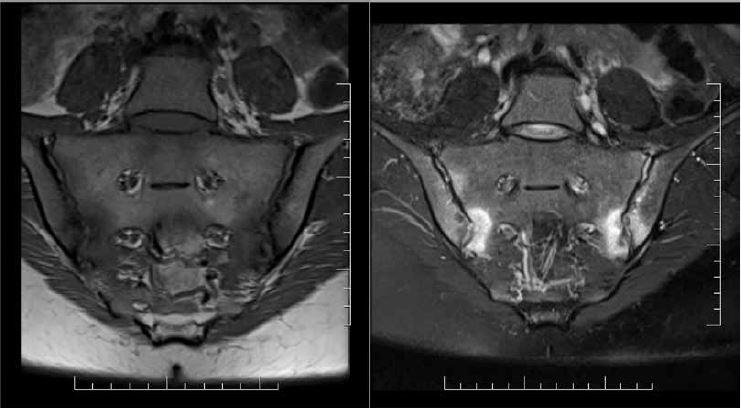 Aktívna sakroiliitída u pacienta s axiálnou SpA. Prítomný rozsiahly hyperintenzívny signál v sekvencii senzitívnej pre tekutinu (T2_tse_fs; vpravo) v dolných sakrálnych a ilických kvadrantoch, lokalizovaný subchondrálne, nepresahuje anatomické hranice. Na korešpondujúcej sekvencii v sekvencii senzitívnej pre tuk (T1_tse; vľavo) má osteitída hypointezívny signál, viditeľné sú aj erózie artikulárnej plochy SI skĺbení. Obraz spĺňa definíciu pozitívneho MRI nálezu pre sakroiliitídu podľa ASAS kritérií (prítomné ≥ 2 vysoko sugestívne signálové lézie svedčiace pre osteitídu na jednom semikoronárnom reze). Archív autora