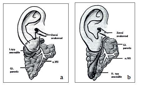 Obr. 4a, b I. a II. typ cervikoaurálních píštělí (klasifikace dle Worka).