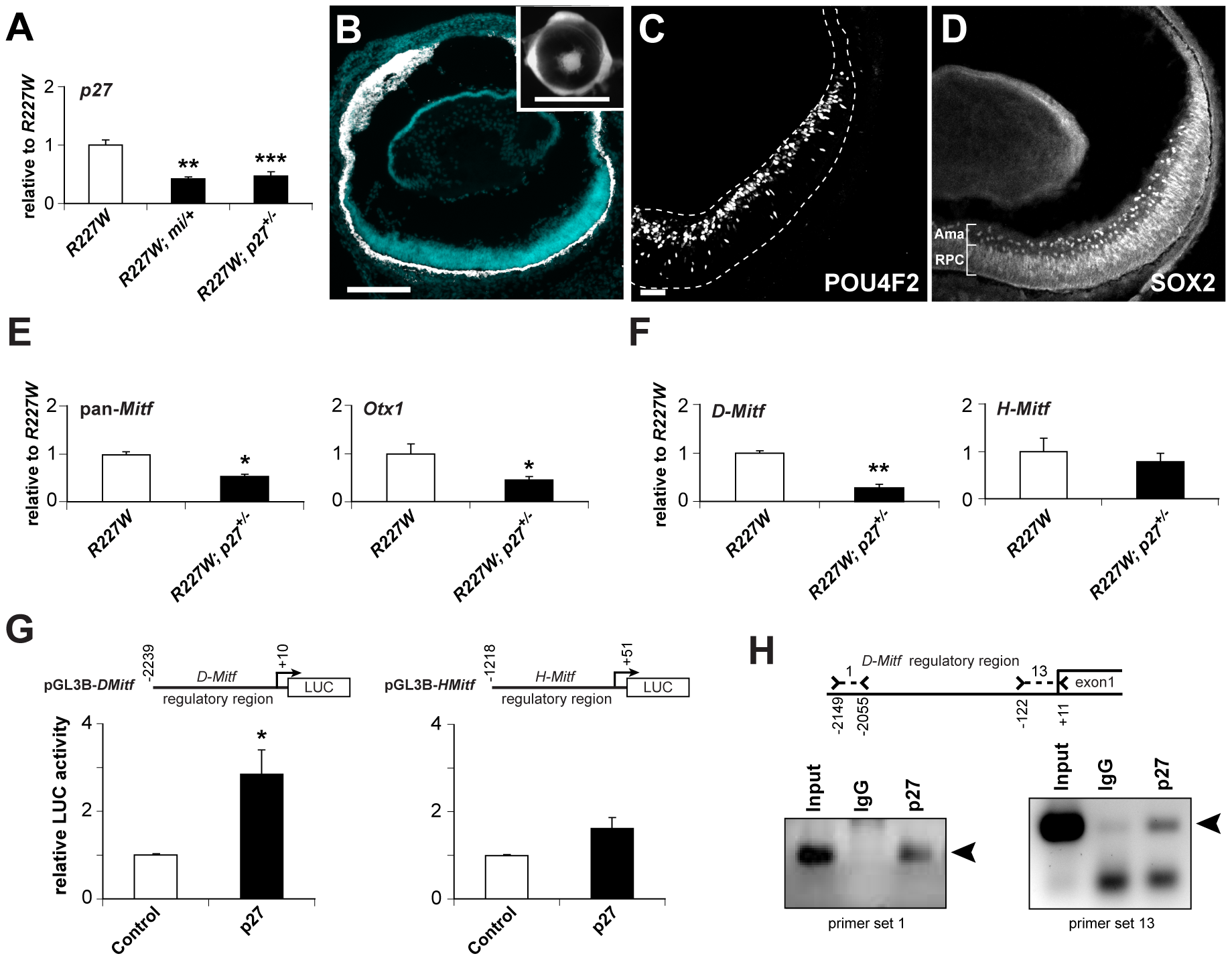 p27Kip1 is part of a gene regulatory network promoting pigmentation in the <i>R227W</i> retina.