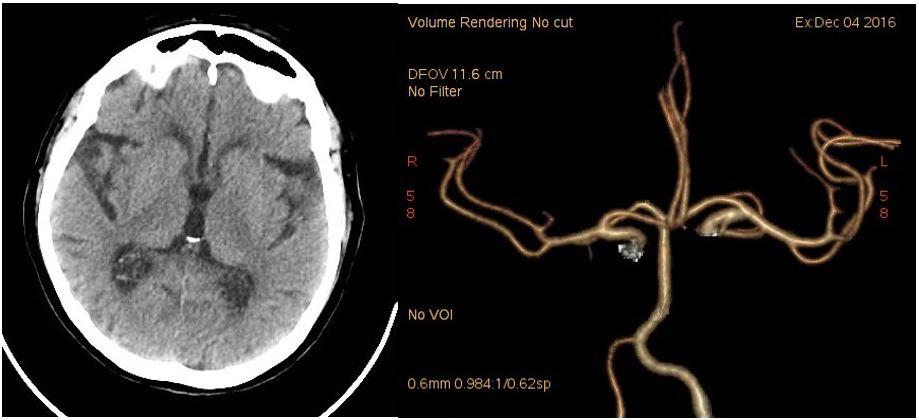 CT mozku při přijetí. 1A: nativ. 1B: CT angiografie (Volume Rendering Technique).