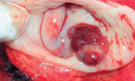 Clear-cell-karcinom pochvy.