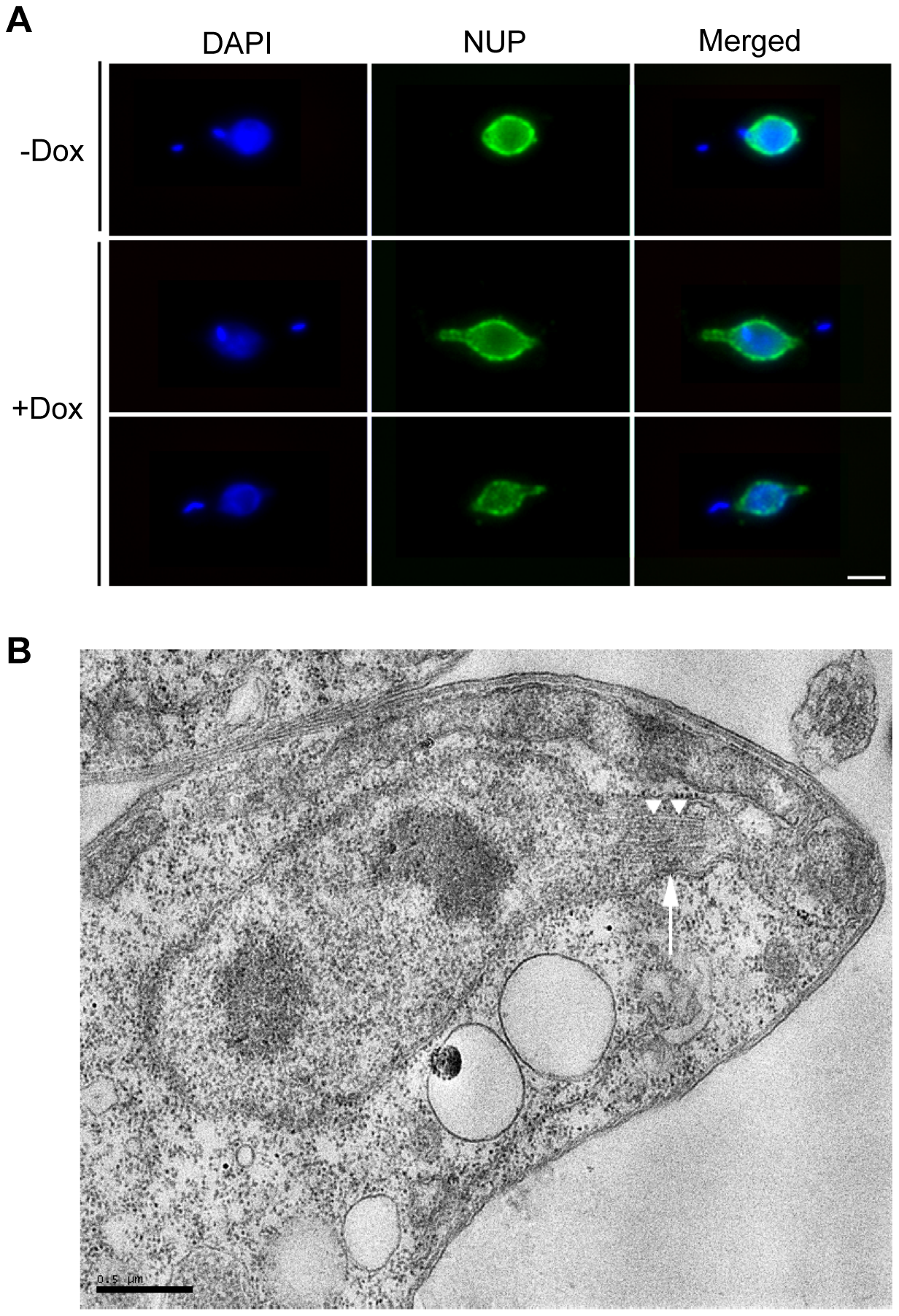 TbKif13-1 depletion results in protrusions of the nuclear envelope.