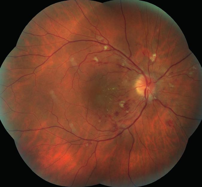 Pravé oko. Terč zrakového nervu neostrých hranic. Vatovitá ložiska a difúzní intraretinální hemorrhagie. V centrální krajině náznak hvězdicovité figury, edém makuly.