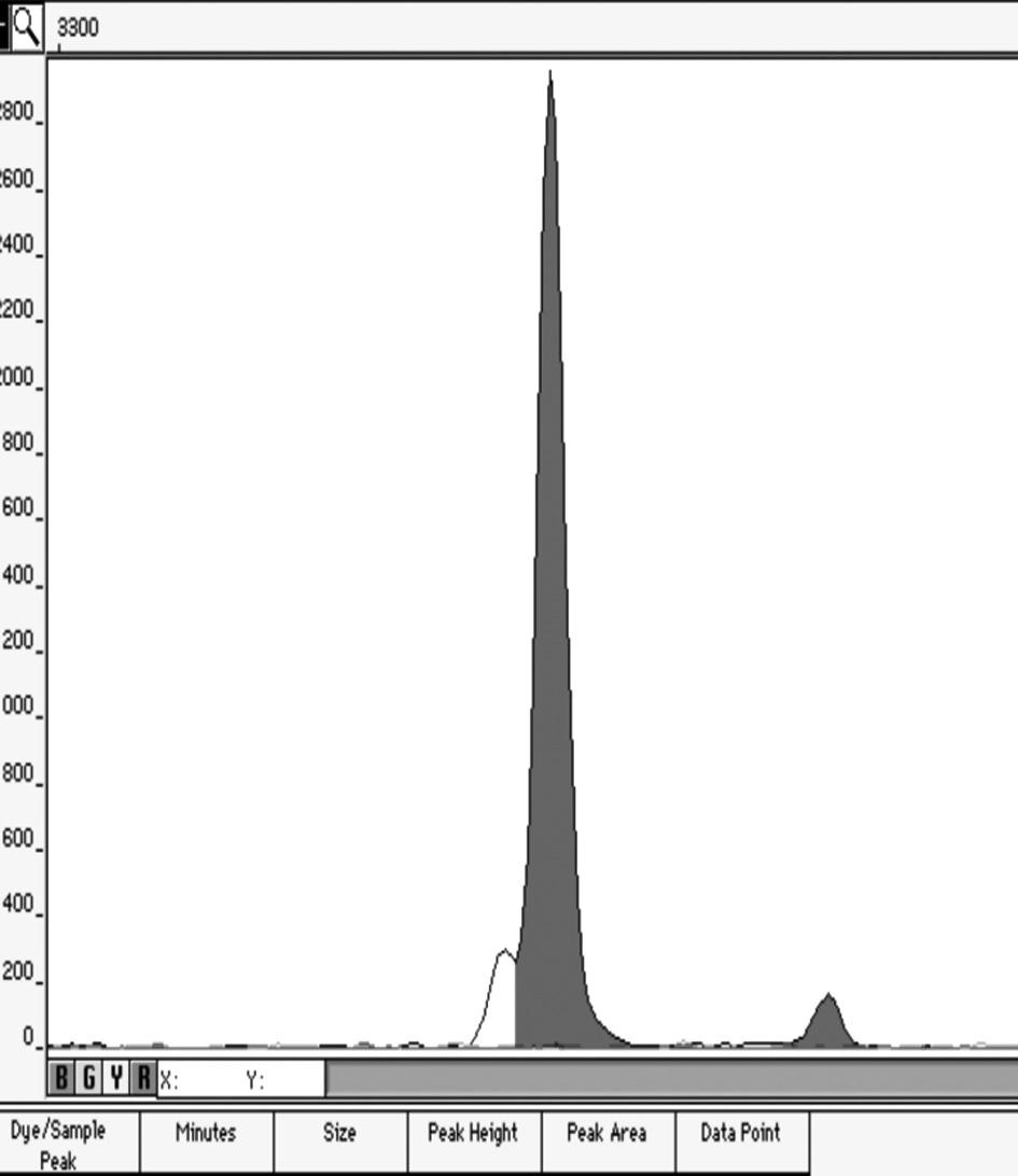 Elektroforetogram artificiální genotypické směsi v poměru 1:49 Ukázka elektroforetogramu genotypů XX/XY v poměru 49/1.