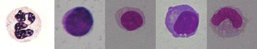 Formy leukocytů (1 segment, 2 a 3 lymfocyt, 4 plazmocyt a 5 monocyt).