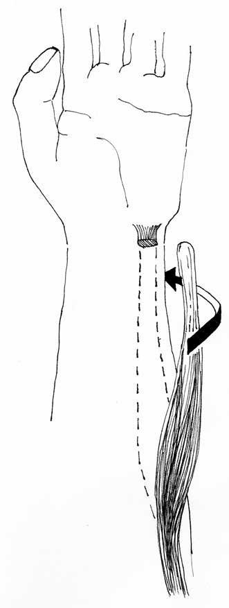 Nečastěji užívaný transfer ulnárního flexoru zápěstí (FCU) při spasticitě předloktí.