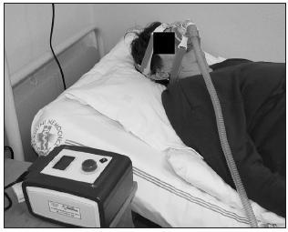 Léčba OSAS kontinuálním přetlakovým dýcháním pomocí přístroje CPAP (continuous positive airways pressure)