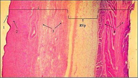 Demonstrace avaskulárního rektovaginálního prostoru (RVp) z resekátu zadní poševní stěny a stěny rekta (hematoxilin eozin)