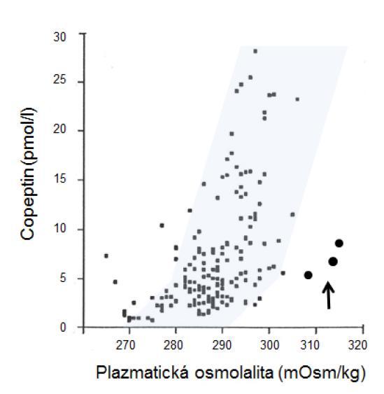 Vzťah medzi osmolalitou plazmy a plazmatickou koncentráciou kopeptínu u pacienta s dysgenézou corpus callosum a adipsickým diabetes insipidus počas 12-hodinového smädového testu. Šedá oblasť na obrázku označuje rozsah normálnych hodnôt u zdravých osôb [14]. V porovnaní s normálnymi hodnotami boli koncentrácie kopeptínu (označené plnými bodkami vpravo od šedej oblasti) nižšie, než by sa očakávalo pre danú hodnotu osmolality.  Fig. 3. Relationship between plasma osmolality and copeptide levels during 12 hours of water restriction in a patient with adipsic diabetes insipidus due to dysgenesis of corpus callosum. The grey area on the figure shows the physiological range in healthy subjects [14]. In this patient, plasma copeptide concentrations were lower, that it would be expected in healthy subjects for the same levels of plasma osmolality (shown by full dots outside of the grey area).