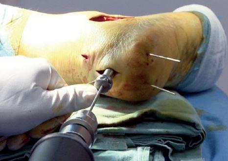 Obr. 8a: Cílení vodícího drátu v ose patní kosti směrem na střed kalkaneokuboidálního kloubu