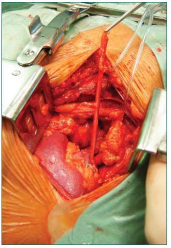 Ledvina po obnovení oběhu uložená v ilické jámě (před implantací močovodu).