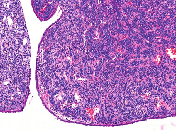 Solitární fibrózní tumor sestává z vřetenitých buněk vzhledu fibroblastů či myofibroblastů, mezi kterými jsou větvící se kapiláry. Na povrchu nádoru je oploštělý endometriální epitel (hematoxylin-eozin, původní zvětšení 200×)