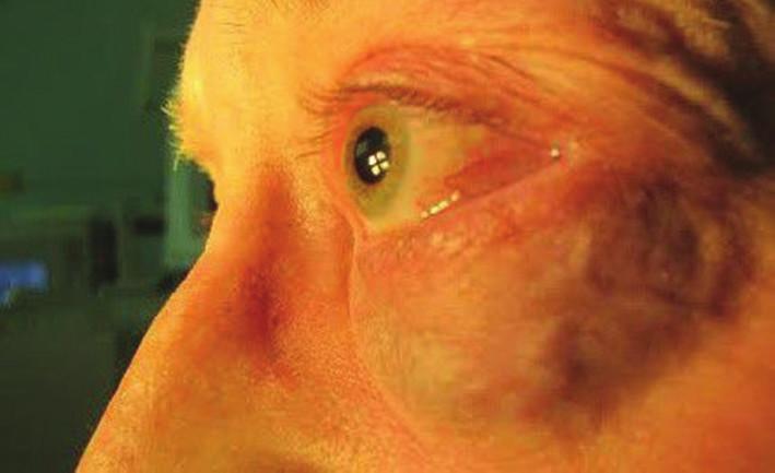 Viditeľné prerastanie tumoru pod dolnou mihalnicou
