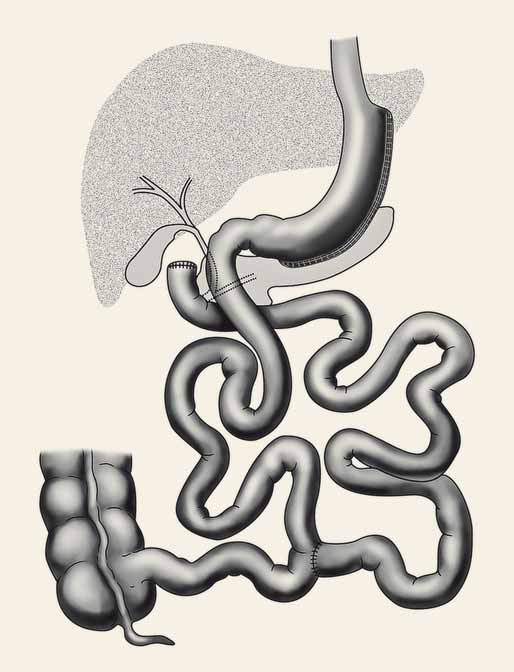 Duodenal switch.