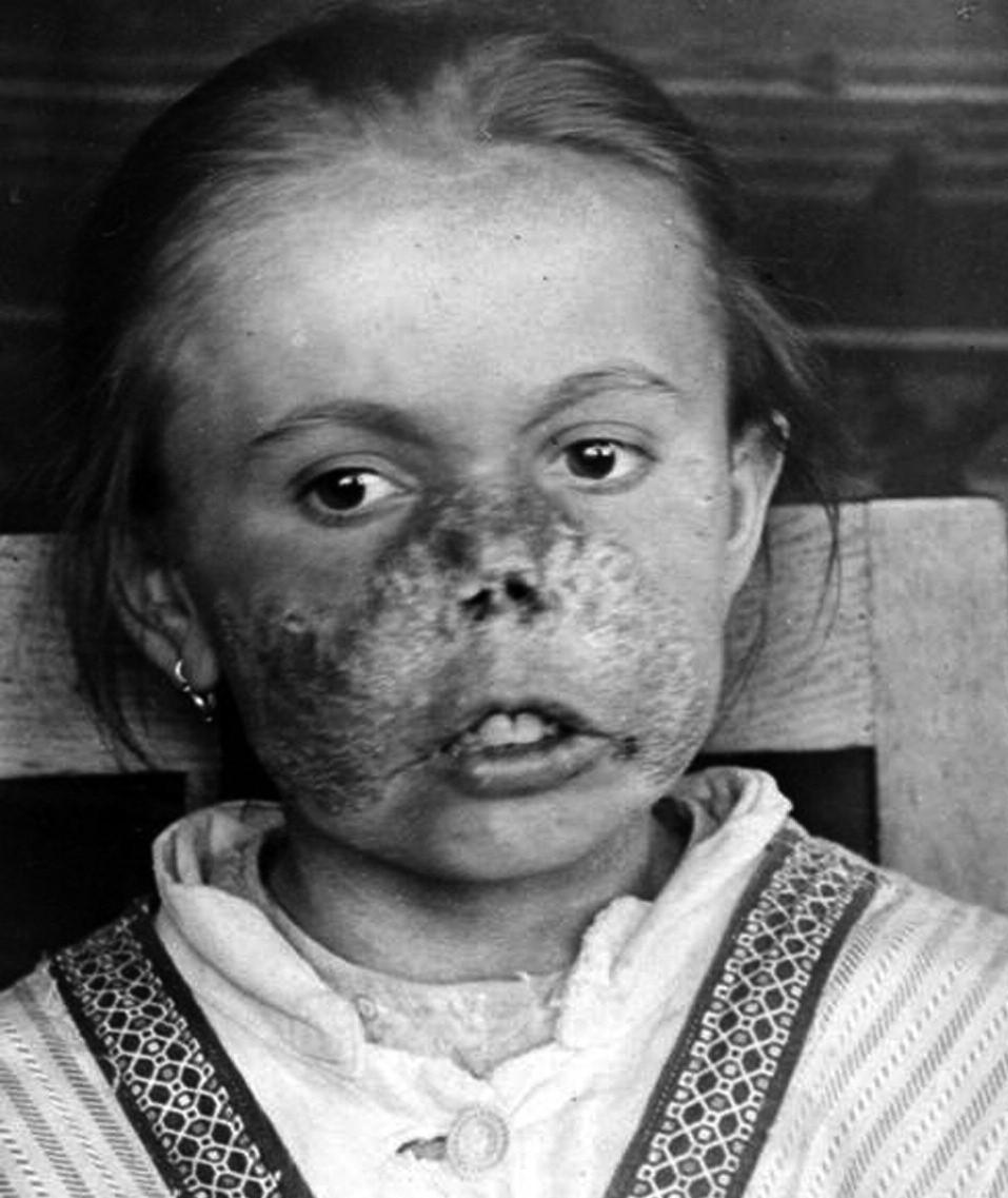 Lupus vulgaris – z vlastní dokumentace A. Trýba po založení kliniky.