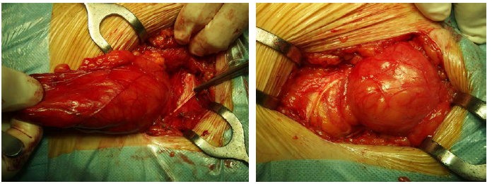 Obr. 2. a 3. Peroperační nález – prolaps stěny močového měchýře do tříselného kanálu