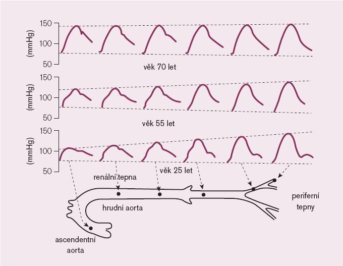 Schéma 2. Vliv věku na tvar pulzové vlny.