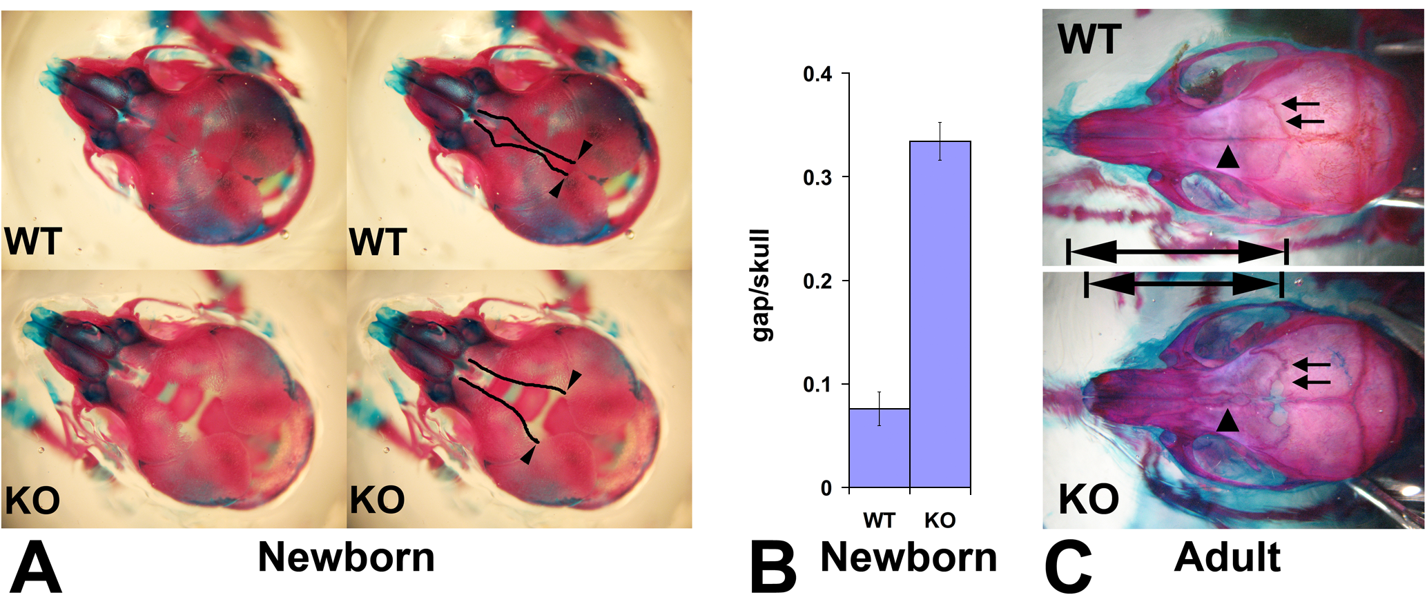 Wnt1-Ate1 mice have defects in the frontal bones.