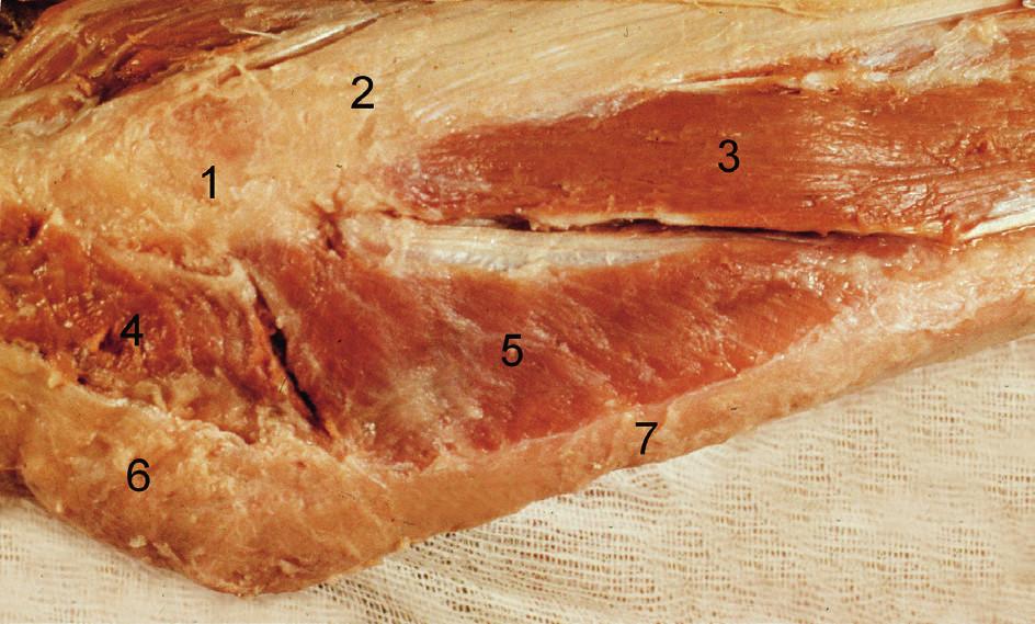 Povrchová vrstva svalů zevní plochy loketního kloubu (pravá strana): 1 – epicondylus lateralis humeri, 2 – m. extensor digitorum, 3 – m. extensor carpi ulnaris, 4 – caput radiale m. tricipitis brachii, 5 – m. anconeus, 6 – olecranon se šlachou m. triceps brachii, 7 – ulna. <i>(Převzato z Bartoníček J, Heřt J. Základy klinické anatomie pohybového aparátu. Praha, Maxdorf 2004.)</i> Fig. 3: Superficial layer of muscles of the lateral surface of the elbow (right side): 1 – lateral epicondyle of humerus, 2 – extensor digitorum, 3 – extensor carpi ulnaris, 4 – lateral head of triceps brachii, 5 – anconeus, 6 – olecranon with triceps brachii tendon, 7 – ulna. <i>(Reprinted from Bartoníček J, Heřt J. [Outline of Clinical Anatomy of Musculoskeletal Apparatus]. Praha, Maxdorf 2004.)</i>