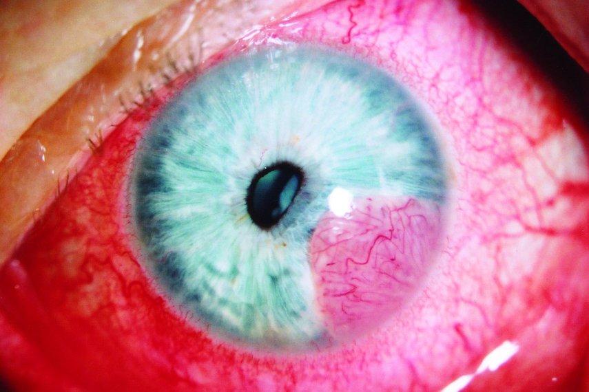 Ložisková tumorózní infiltrace duhovky levého oka.