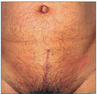Dnešní jizva po otevřené radikální prostatektomii.