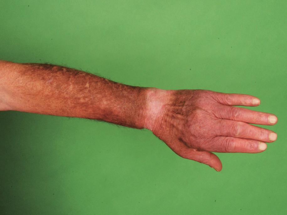 Pacient č. 3 – dorzum ruky.