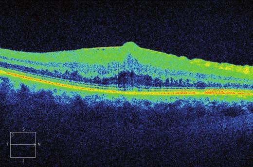 Horizontální transfoveolární OCT sken, předoperační nález ERM na pravém oku