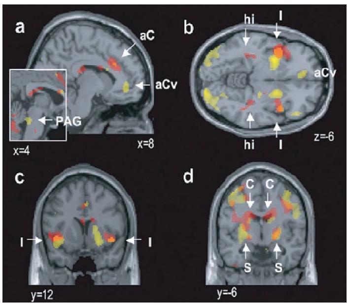 """Obr. 4. Aktivita mozku při prožívání mateřské lásky (žlutě) a při prožívání romantické lásky (červeně, muži i ženy). Kromě toho, že se řada uzlů obou sítí překrývá, existují oblasti aktivované jen mateřskou, nebo jen romantickou láskou (25).<br> Vysvětlivky: x, y s číselnými indexy: souřadnice dle Talairacha aC=přední cingulární kůra, aCv=nejpřednější část cingulární kůry, PAG=šeď kolem mokovodu (""""oblaka"""" nervových buněk kolem mokovodu, střední mozek), C=nucleus caudatus (součást bazálních ganglií, šedé hmoty v hloubce čelních laloků), I=insula (ostrov), korová oblast v rýze mezi čelním a spánkovým lalokem, S=striatum, těleso žíhané, bazální ganglia tvořená nc. caudatus, putamen a palidem, hi=hipokampus."""