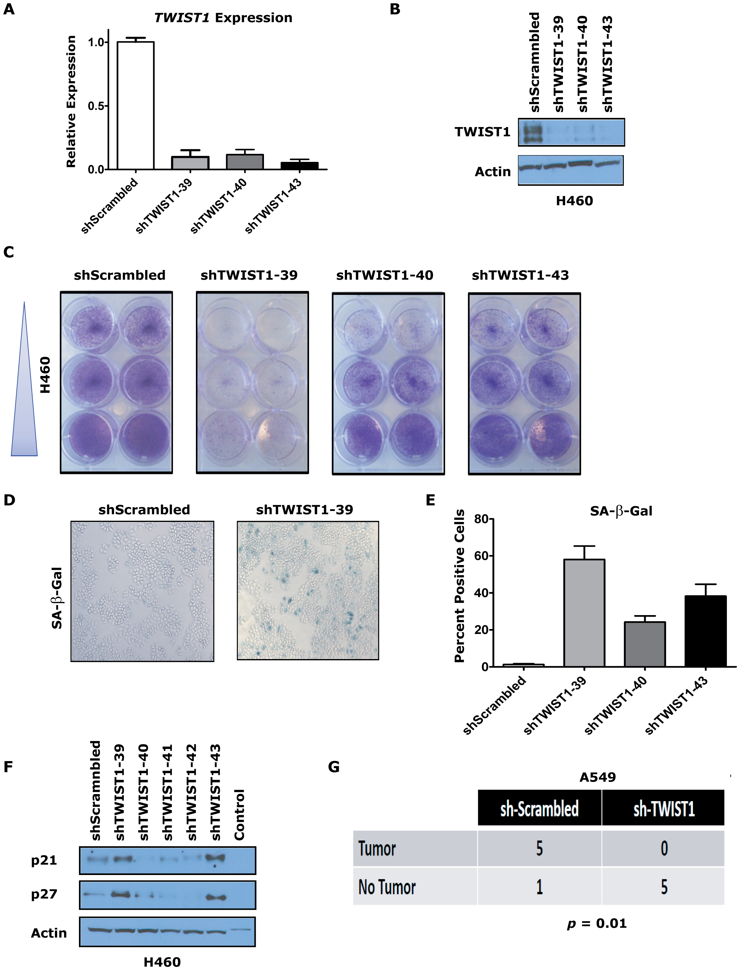 <i>TWIST1</i> knockdown activates senescence in human non-small cell lung cancer cells.