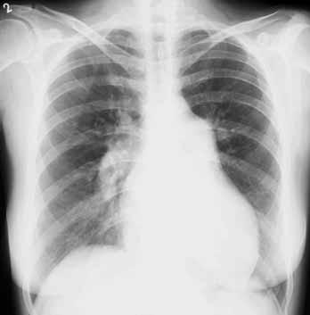 Skiagram hrudníku u nemocné s pokročilou plicní arteriální hypertenzí. Aortální knoflík je nevýrazný. Levá kontura srdeční je tvořena zvětšenou pravou komorou. Šířka pulmonálního segmentu: 55 mm, šířka sestupné větve pravé plicnice: 23 mm. Laskavě zapůjčil doc. MUDr. Jaroslav Ort, CSc., Radiodiagnostická klinika VFN a 1. LF UK.