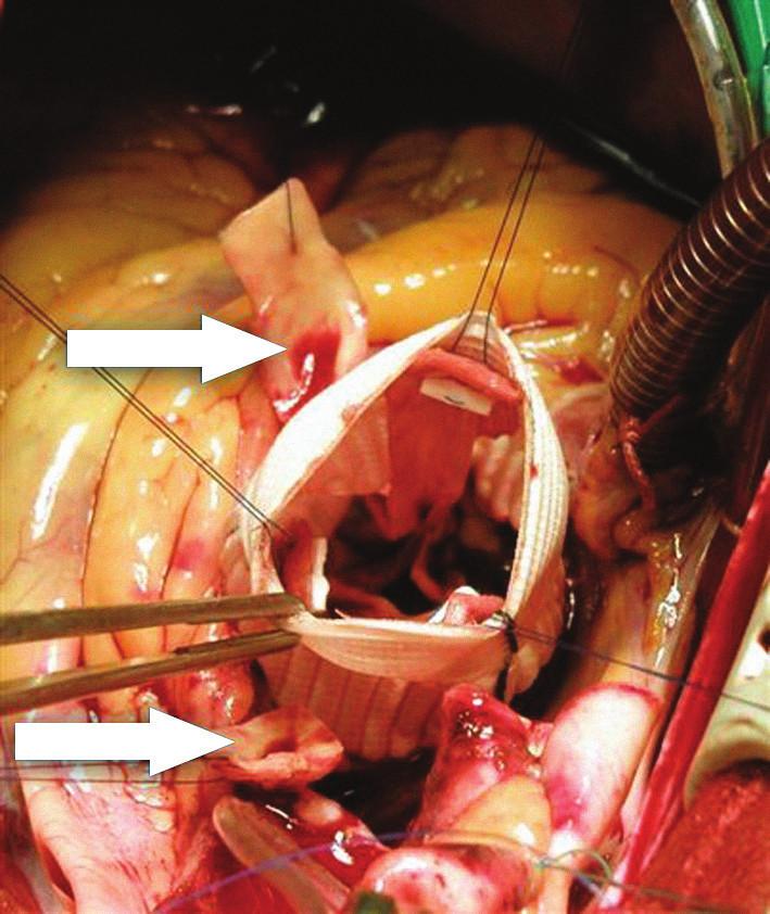 Foto z operace během reimplantace aortální chlopně. Aortální chlopeň a její 3 komisury jsou již upevněny uvnitř cévní protézy pomocí 3 stehů. Šipky označují vystřižené terčíky odstupů věnčitých tepen.