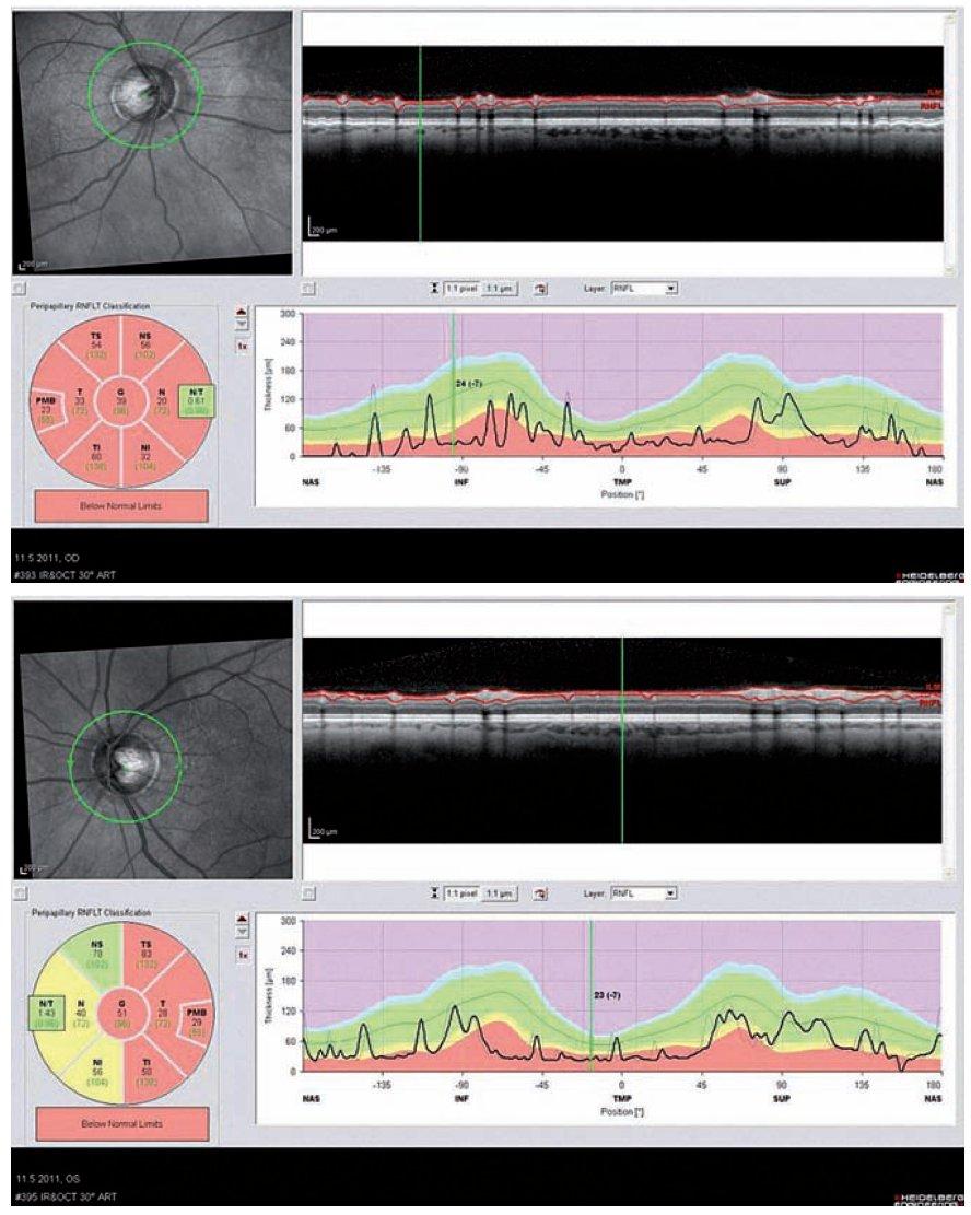 Optická koherentní tomografie (OCT) oka pravého a levého u 61letého pacienta po opakovaných optických neuritidách bil.