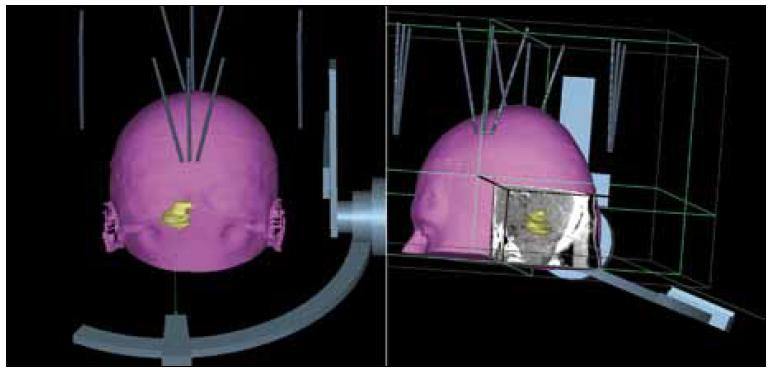 3D rekonstrukce transcerebellárního přístupu s obrácenou montáží stereotaktického rámu.