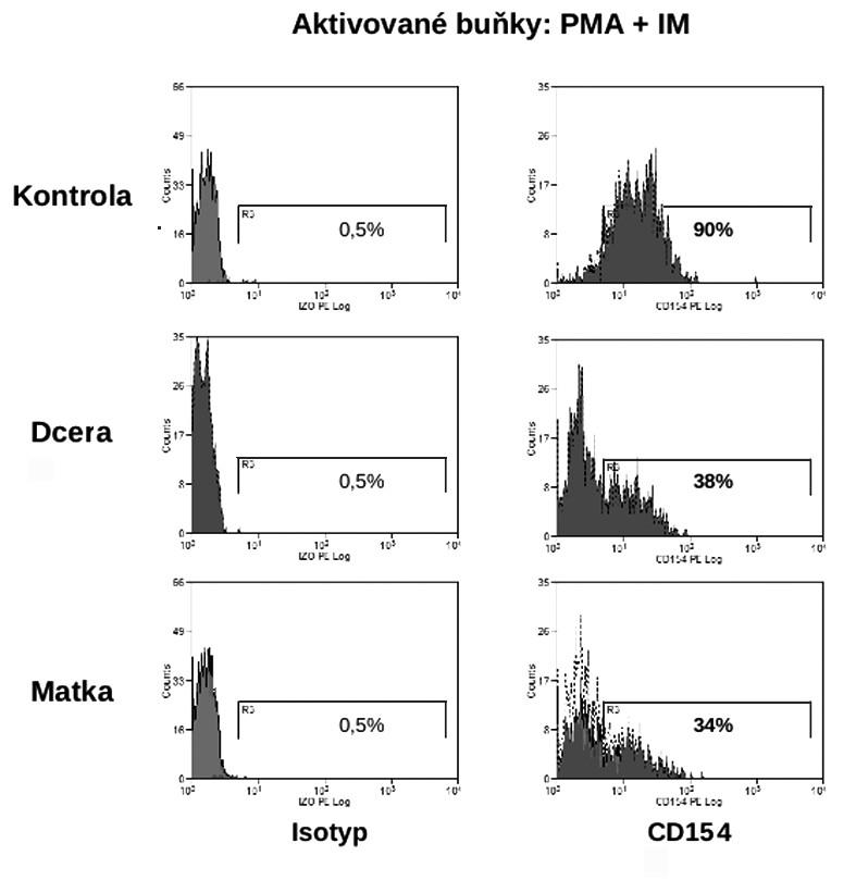 Záchyt přenašeček XHIGM (plná krev, aktivované buňky) Fig. 4. Capture of XHIGM carriers (whole blood, activated cells)