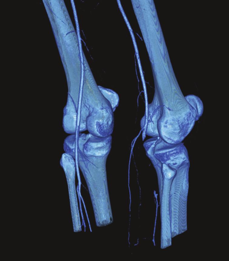 Obr. 1. CTA tepien dolných končatín pred femoro-tibio-fibulárnou rekonštrukciou vpravo  Fig. 1. CTA of the lower extremity arteries prior to femoral- tibial-fibular reconstruction on the right