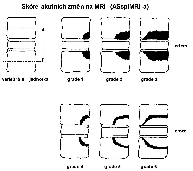 Skóre akutních a chronických změn hodnocených MR. Modifikováno dle Brauna a kol. (7). • skóre akutních změn (ASspiMR-a)  0 = normální nález, bez léze 0 = normální nález, bez léze 1 = mírný edém kostní dřeně, < 25 %  2 = střední edém kostní dřeně, < 50 %  3 = velký edém kostní dřeně, > 50 %  4 = drobná eroze, < 25 %  5 = střední eroze, > 25 % ale < 50 %  6 = velká eroze, > 50 %  • skóre chronických změn (ASspiMR-c) 1 = mírná sklerotizace, suspektní změny 2 = sklerotizace/kvadratizace/poč. syndesmofyty 3 = 1–2 syndesmofyty/malé eroze 4 = dva a více syndesmofytů/discitida/několik erozí 5 = přemosťující syndesmofyty 6 = vertebrální fúze