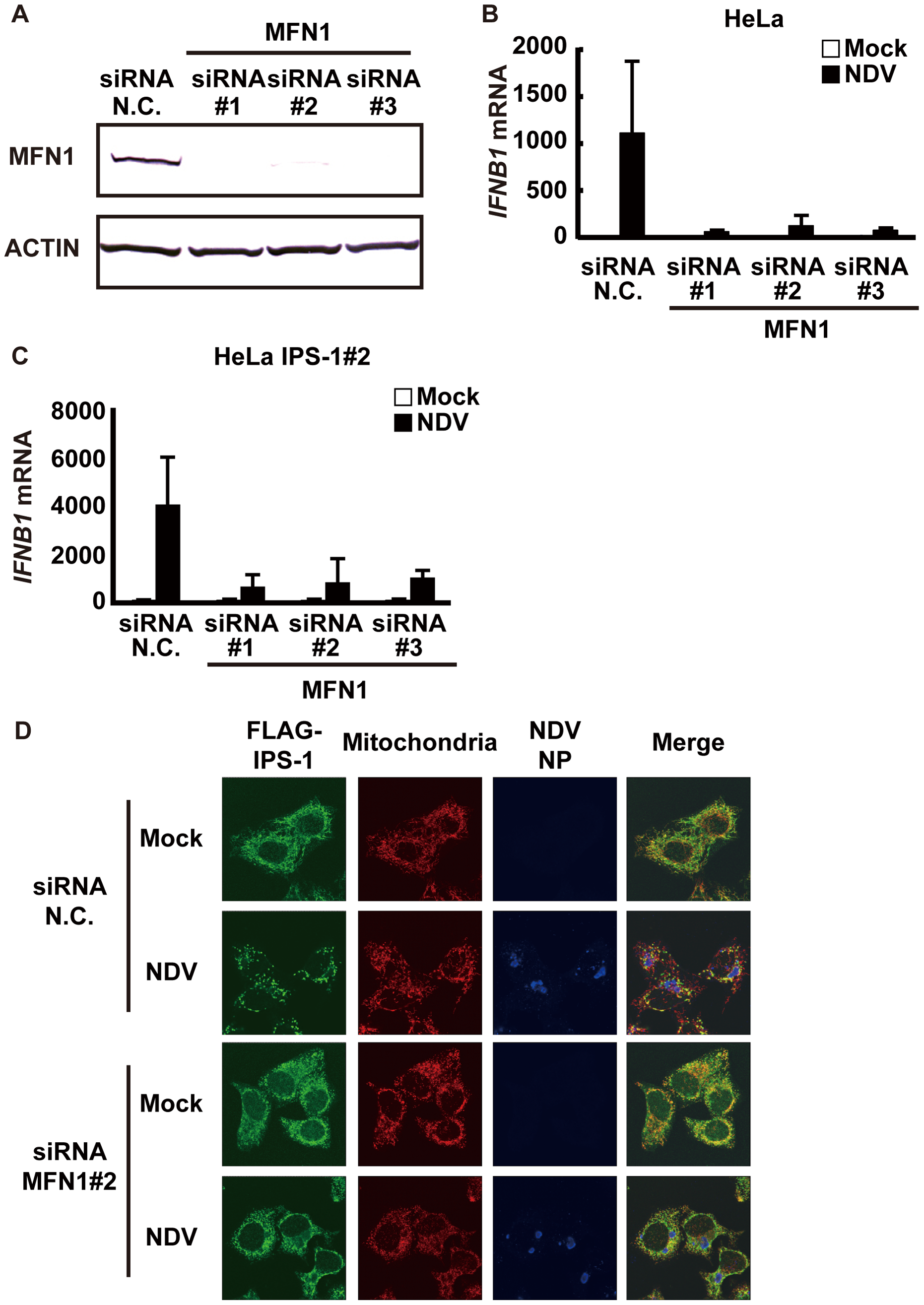 Knockdown of MFN1 inhibits the redistribution of IPS-1 induced by NDV infection.