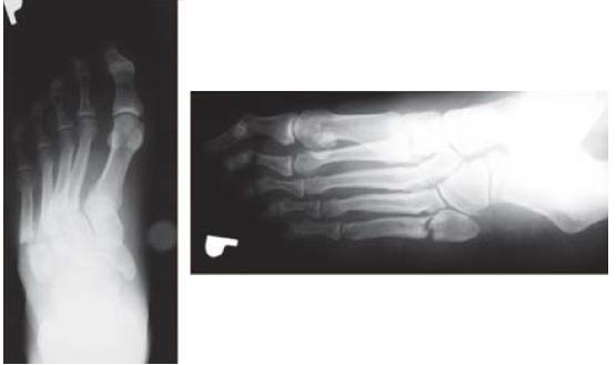 Obr. 7.1. RTG-snímka pravého chodidla pacienta s DM 2. typu
