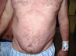 Snímek pvního pacienta s velkými kopřivkovými morfami před léčbou anakinrou