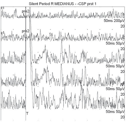 Příklad nevýbavné kožní periody útlumu (pacient č. 10) snímané z m. APB po bolestivé stimulaci 1. prstu (první dvě horní křivky jsou vizualizací svalové síly bez aplikace bolestivých stimulů – první je maximální volní kontrakce, druhá cca čtvrtinová síla; další tři křivky reprezentují tři pokusy o vybavení CSP z 1. prstu). Fig. 2. Example of cutaneous silent period (patient 10) recorded from m. APB after painful stimulation of the first finger (the first two upper curves represent visualization of muscle forces without application of painful stimuli – the first represents maximum voluntary contraction, the second of about a quarter strength; the other three curves represent three attempts to gain CSP from the first finger).