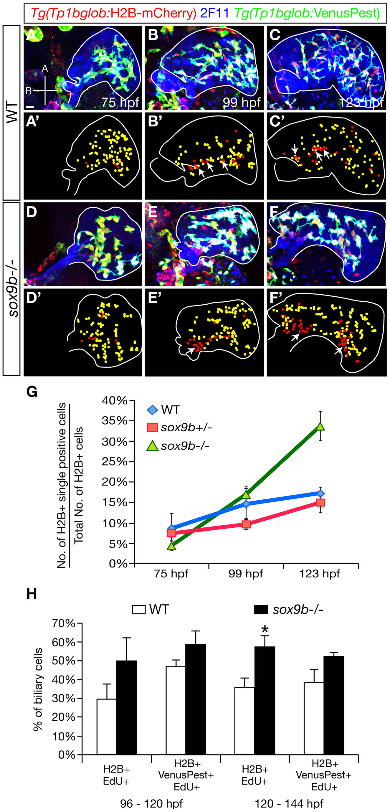The pattern of Notch signaling activity is altered in <i>sox9b</i> mutants.