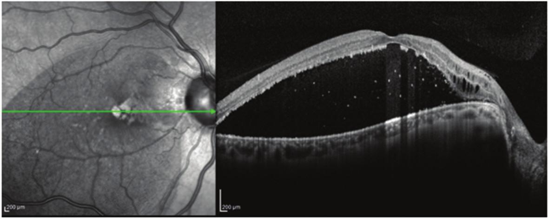Pacient č. 6 Lineární horizontální transfoveolární OCT sken OP před PPV, makulární retinoschíza vnitřní a zevní sítnicové vrstvy se subretinální tekutinou