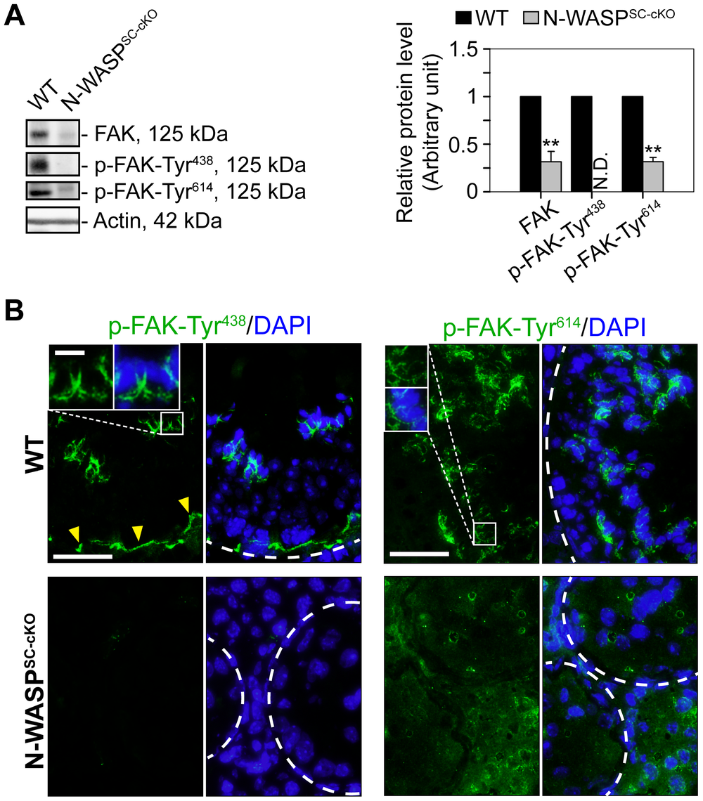 Modifications in the localization and expression patterns of the ES regulatory protein FAK and its phosphorylated forms in N-WASP<sup>SC-cKO</sup> tubules.
