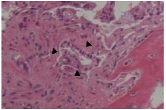 Bone marrow biopsy. Hematoxylin and eosin staining of the bone marrow biopsy performed at the left iliac revealed adenocarcinoma cells (×400, black arrowheads)