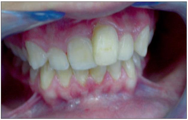 Obr. 1a. Pacient ve věku 15 let, situace 5 měsíců po úrazu zubů 11 a 21 (u zubu 21 provedena chirurgická extruze).
