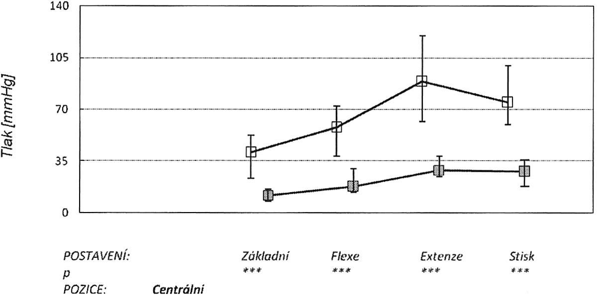 V grafu jsou znázorněny: medián, 25. a 75. percentil v úrovni centrální části kanálu v různých zátěžových pozicích ruky (základní neutrální postavení, maximální pasivní flexe, extenze a stisk). Horní křivka znázorňuje tlaky před protětím ligamenta, dolní po protětí. Graph 2. The graph depicts: the median, the 25th and 75th percentiles at the central part of the tunnel during various stress positions of the hand (a basic neutral position, the maximum passive flexion, extension and a hand grip). The upper curve depicts pressure measurements prior to the ligament section, while the lower one those after the section procedure.