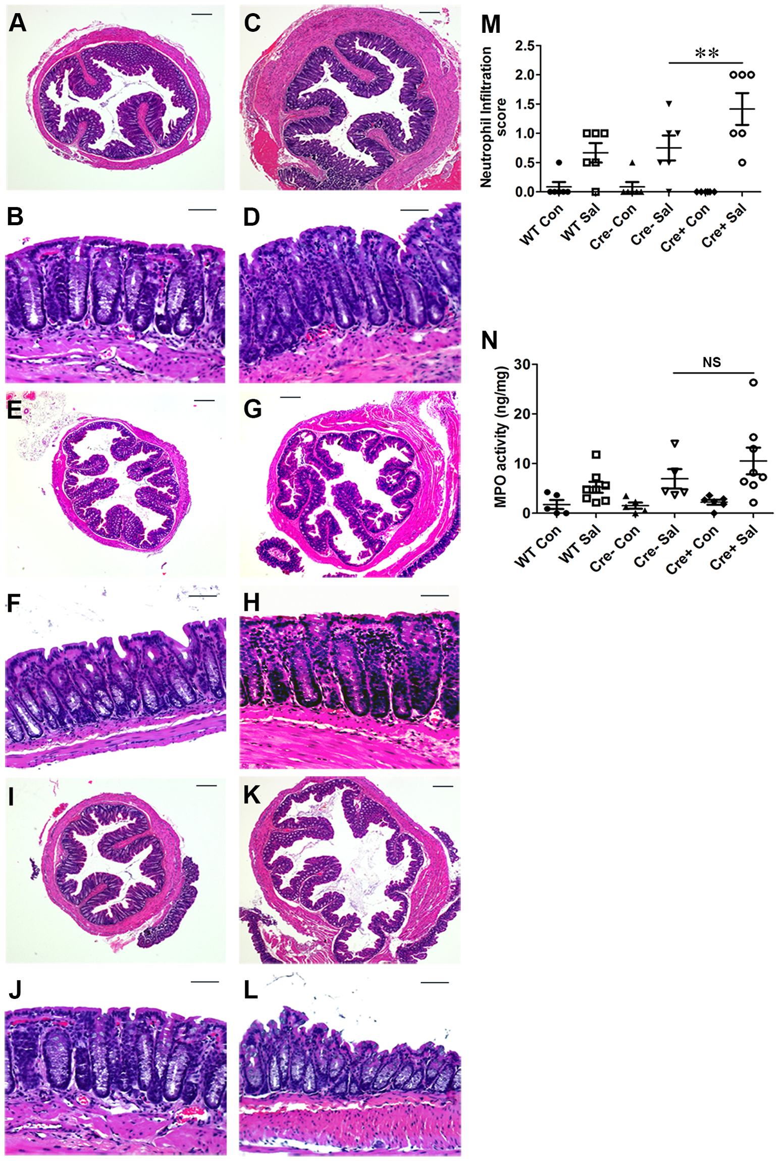 Colitis severity is more pronounced in PPARγVillinCre<sup>+</sup> mice than in wild-type mice.
